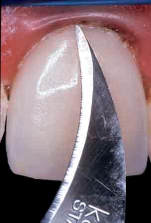 better bonding dental restorations Figure 011