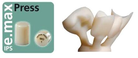 e.max bond or cement Figure 1