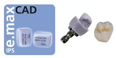 e.max bond or cement figure 2
