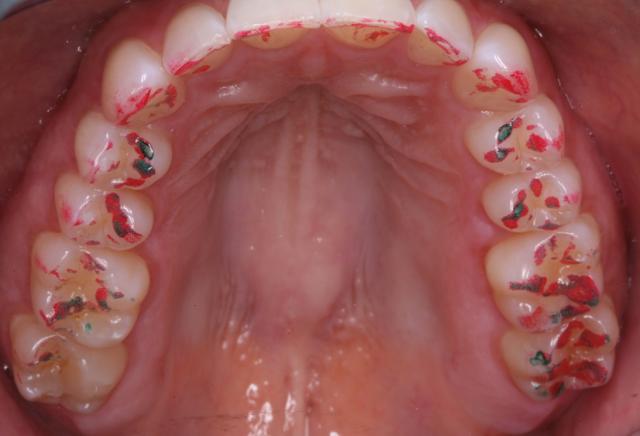 occlusal disease bite