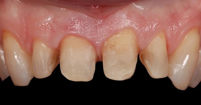 existing interproximal restorations figure 1b