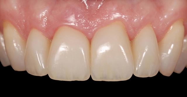 existing interproximal restorations figure 1c