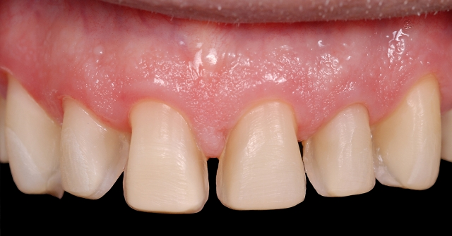 triangular-shaped teeth figure 2b