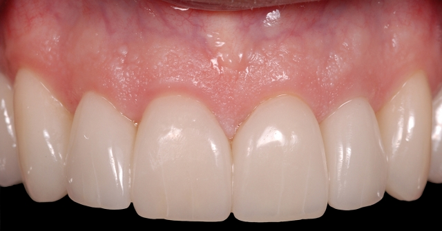 open gingival embrasures figure 2c