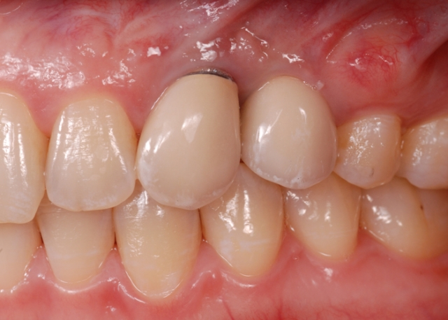 Dark tissue around implants figure 1