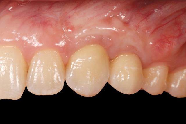 Dark tissue around implants figure 3