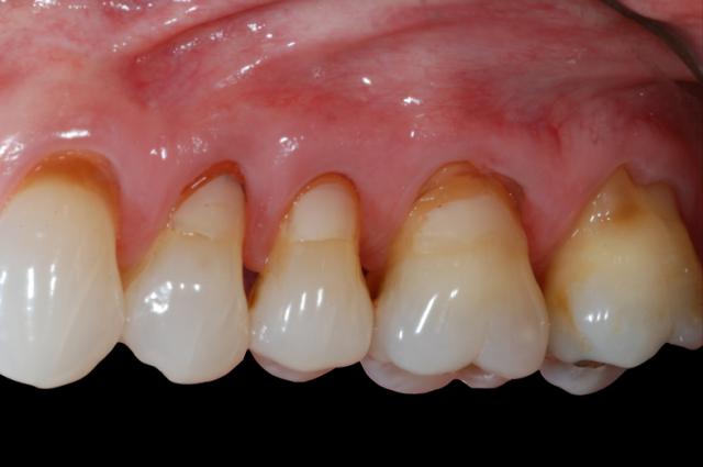 pre treatment soft tissue sequence