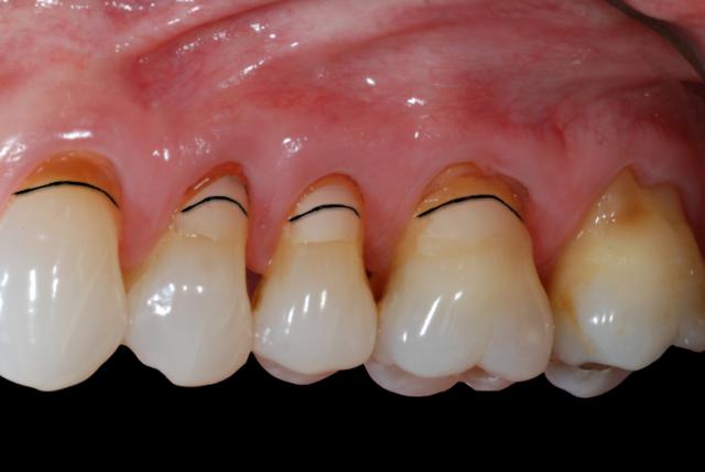 estimate soft tissue position root coverage