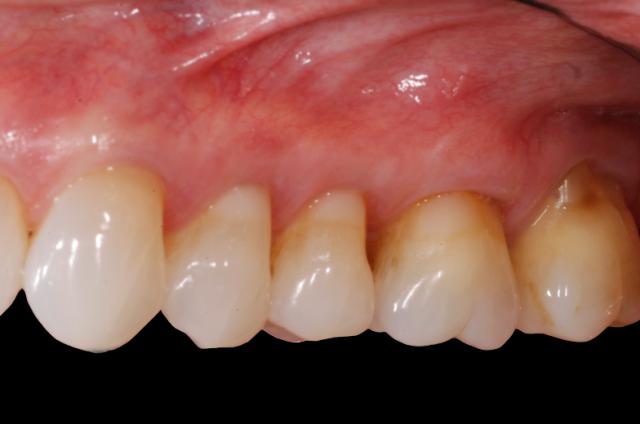 post restorative treatment soft tissue