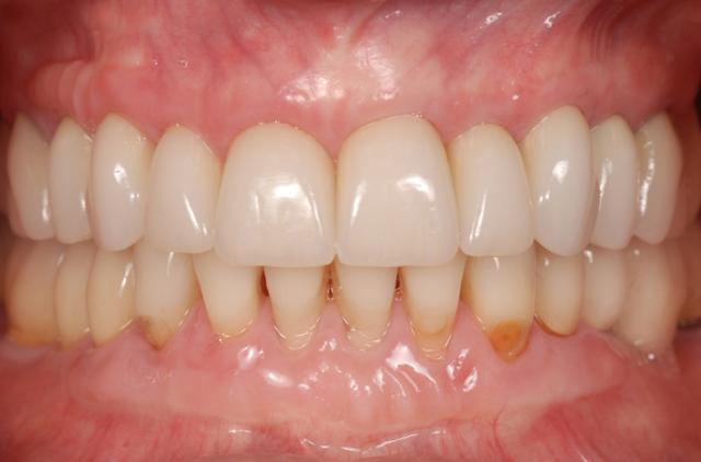 restorative treatment soft tissue