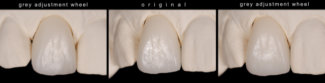 how to take out tooth surface texture