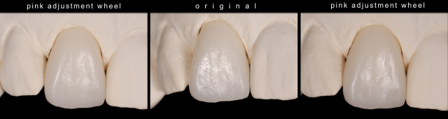 how to create a high luster for dental restorations