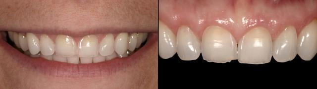 pink adjustment wheel for dental restorations