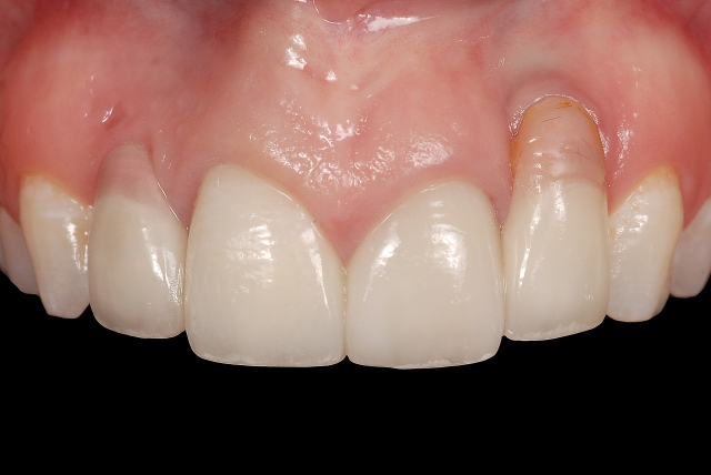 Hybrid implant abutment caution Figure 2
