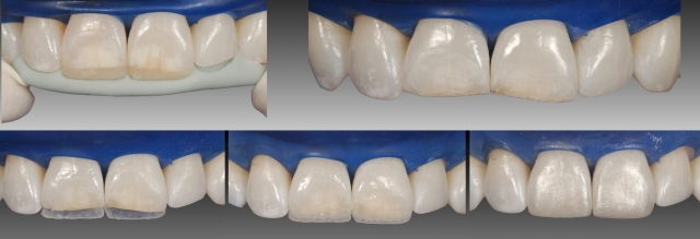 Using glycerin on composite restorations