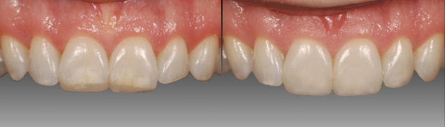 Working with glycerin on composite restorations