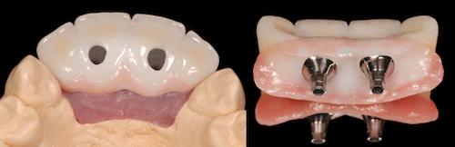 screw retained implants