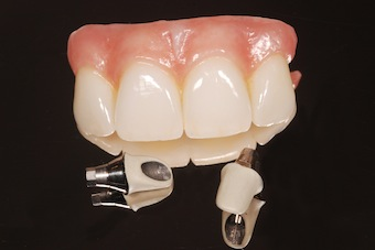 screw retained implant restoration