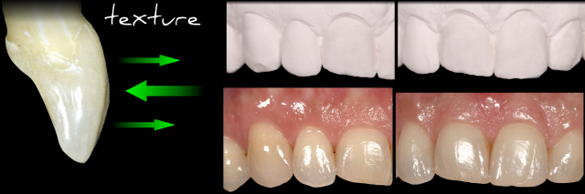 determining and communicating tooth surface texture