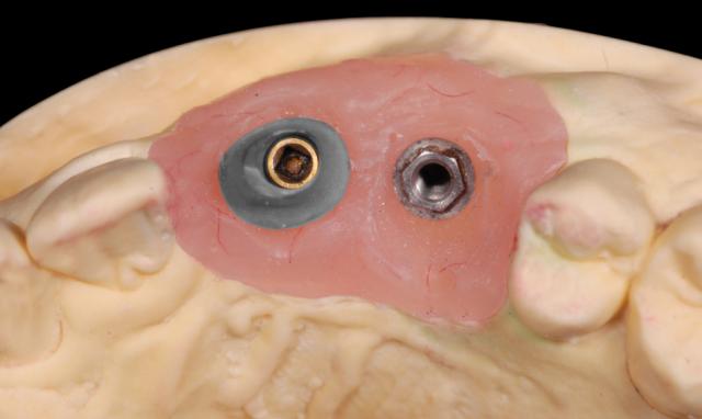 implant abutment figure 002