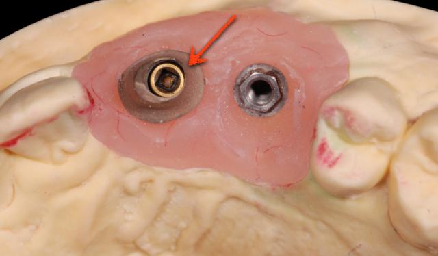 implant abutment figure 003