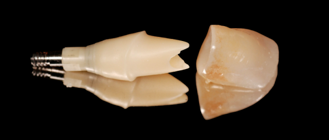 custom zirconia abutment figure 1