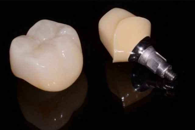 Implant treatment planning