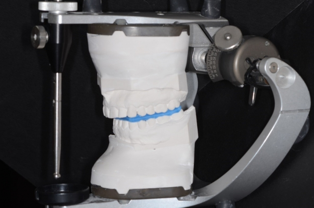 articulator disc figure 3