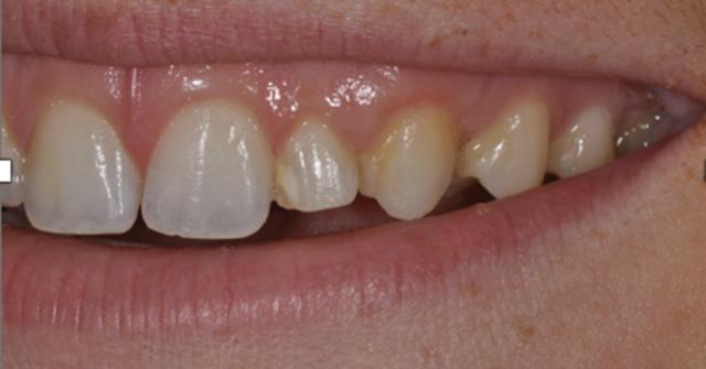 implant pre-treatment