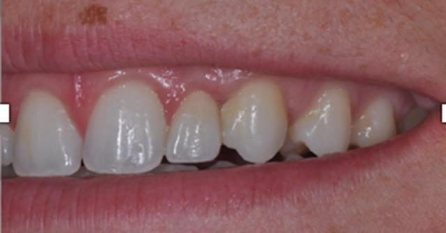 implant post-treatment