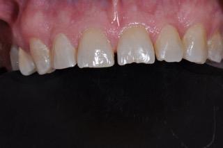 pre-treatment tooth preparation