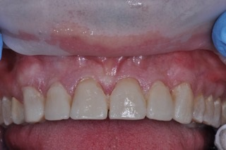 tooth prep mock up