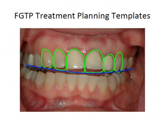 facially generated dental treatment planning