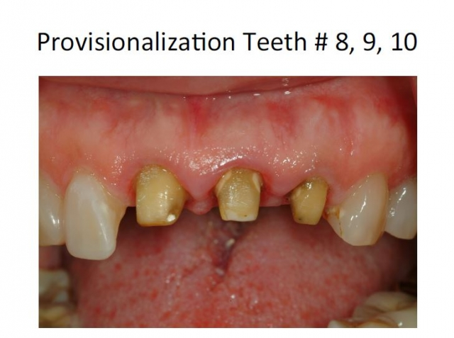 tooth preparation provisionalization