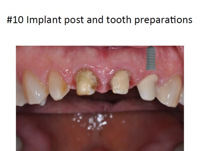implant tooth prep