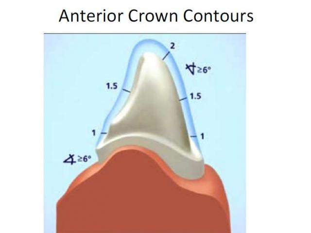 anterior crown contours