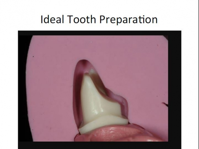 ideal tooth preparation