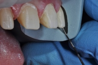 tooth preparation guide