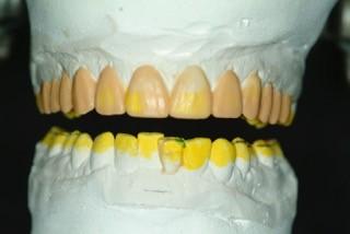 diagnostic wax up restorative treatment
