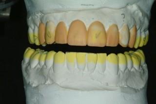 diagnostic waxup