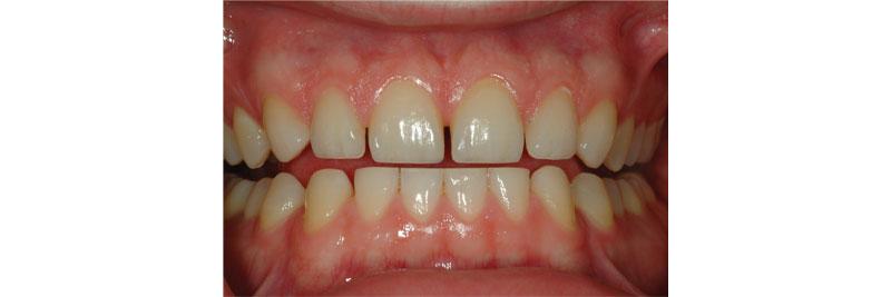 image of teeth