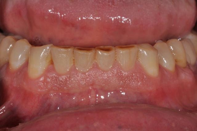 periodontal porcelain veneer template
