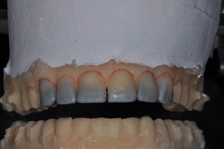 tooth preparation design diagnostic wax up