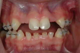 pre-op photo for ogilodontia patient