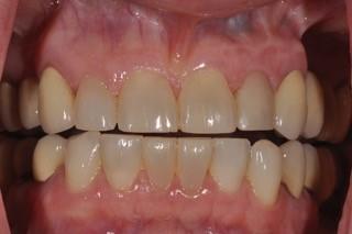 provisional implant restoration