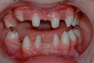 oligodontia patient example photo