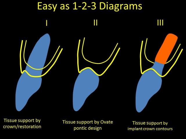 Single anterior implants made easy