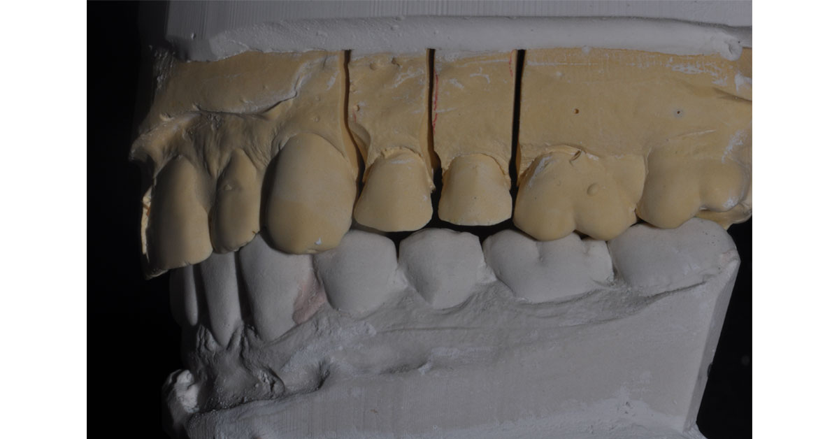 side view of molded mouth
