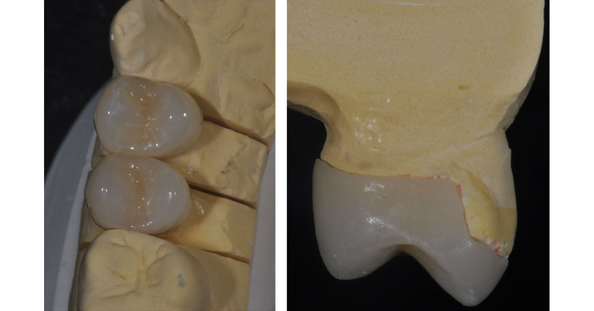 top view of molded top with the two overlays in place of the molded teeth