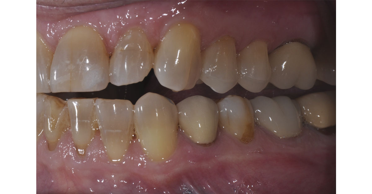 side view of patients mouth with the overlays in place